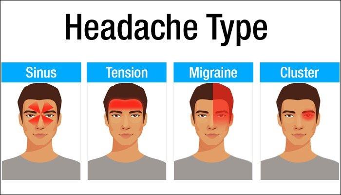 Massage for Headaches, Migraine RELIEF in Santa Barbara, Goleta