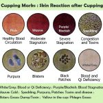 Cupping for Athletes